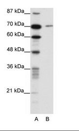 LAS1L Antibody - A: Marker, B: HepG2 Cell Lysate.  This image was taken for the unconjugated form of this product. Other forms have not been tested.