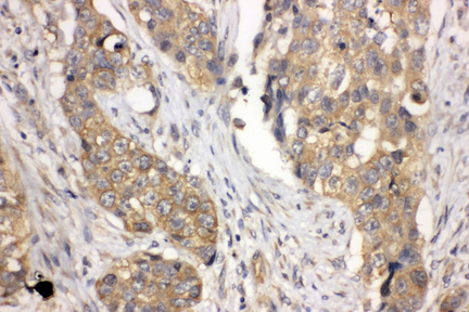 LASP1 antibody. IHC(P): Human Lung Cancer Tissue.