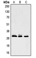 Western blot analysis of LASP1 expression in A431 (A); MCF7 (B); mouse brain (C) whole cell lysates.