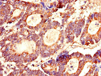 Immunohistochemistry of paraffin-embedded human colon cancer using LASP1 Antibody at dilution of 1:100