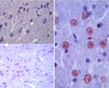 IHC of Latexin in paraffin-embedded formalin-fixed rat brain tissue using an isotype control (top, left) and Polyclonal Antibody to Latexin (bottom, left and right (100X)) at 1:100.
