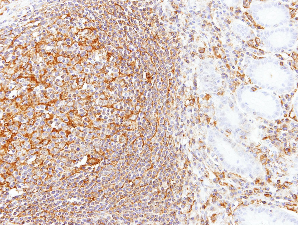IHC of paraffin-embedded Gastric N+T using LBP antibody at 1:100 dilution.