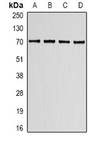 Western blot analysis of Lamin B Receptor expression in K562 (A); HT29 (B); mouse spleen (C); mouse lung (D) whole cell lysates.