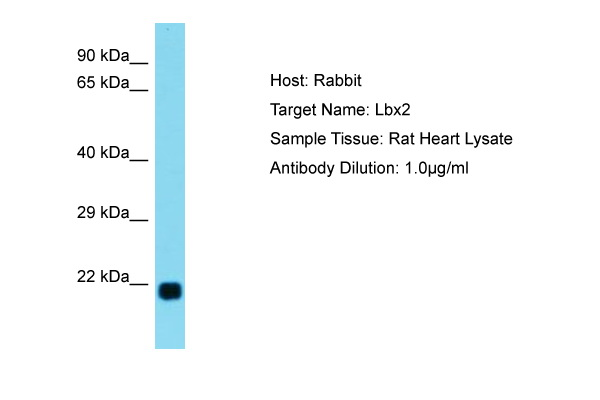 LBX2 Antibody -  This image was taken for the unconjugated form of this product. Other forms have not been tested.