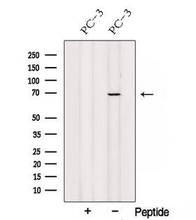 LCA3 / SPATA7 Antibody - Western blot analysis of extracts of PC-3 cells using SPATA7 antibody. The lane on the left was treated with blocking peptide.