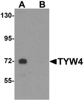 LCMT2 / YW4 Antibody - Western blot analysis of TYW4 in rat brain tissue lysate with TYW4 antibody at 1 ug/ml in (A) the absence and (B) the presence of blocking peptide.