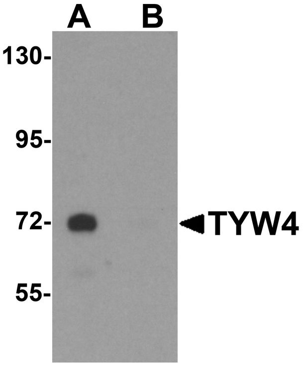 Western blot analysis of TYW4 in rat brain tissue lysate with TYW4 antibody at 1 ug/ml in (A) the absence and (B) the presence of blocking peptide.