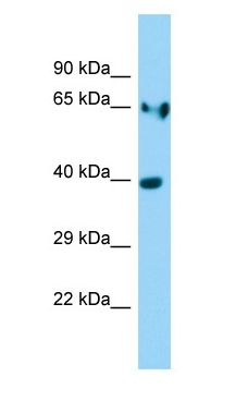 LDHA / LDH A antibody Western Blot of Rat Stomach.  This image was taken for the unconjugated form of this product. Other forms have not been tested.