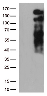LDLR / LDL Receptor Antibody - HEK293T cells were transfected with the pCMV6-ENTRY control. (Left lane) or pCMV6-ENTRY LDLR. (Right lane) cDNA for 48 hrs and lysed. Equivalent amounts of cell lysates. (5 ug per lane) were separated by SDS-PAGE and immunoblotted with anti-LDLR. (1:2000)
