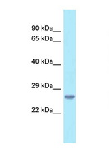 C18orf1 antibody Western blot of U937 Cell lysate. Antibody concentration 1 ug/ml.  This image was taken for the unconjugated form of this product. Other forms have not been tested.