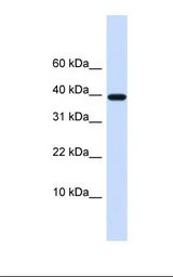 LECT1 / Chondromodulin-I Antibody - 721_B cell lysate. Antibody concentration: 1.0 ug/ml. Gel concentration: 10-20%.  This image was taken for the unconjugated form of this product. Other forms have not been tested.