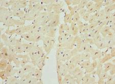 LECT1 / Chondromodulin-I Antibody - Immunohistochemistry of paraffin-embedded human heart tissue at dilution 1:100