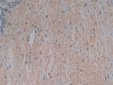 DAB staining on IHC-P; Samples: Human Stomach Tissue