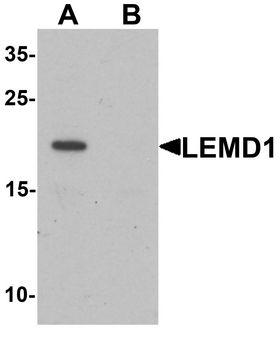 LEMD1 Antibody - Western blot analysis of LEMD1 in A20 cell lysate with LEMD1 antibody at 1 ug/ml in (A) the absence and (B) the presence of blocking peptide.