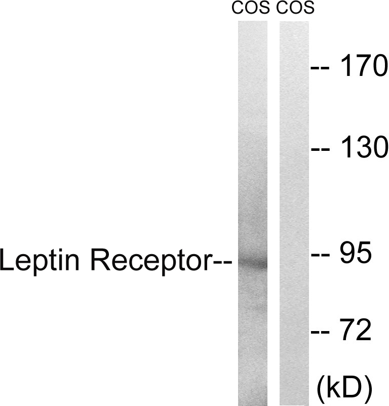 Western blot analysis of lysates from COS7 cells, treated with calyculinA 50ng/ml 30', using Leptin Receptor Antibody. The lane on the right is blocked with the synthesized peptide.