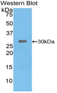 Western blot of recombinant LEPR / Leptin Receptor.  This image was taken for the unconjugated form of this product. Other forms have not been tested.