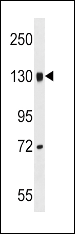 LEPR Antibody western blot of mouse brain tissue lysates (35 ug/lane). The LEPR antibody detected the LEPR protein (arrow).