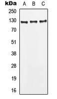 Western blot analysis of CD295 expression in MCF7 (A); HepG2 (B); HeLa (C) whole cell lysates.