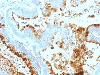 Formalin-fixed, paraffin-embedded human colon carcinoma stained with Blood Group Lewis a antibody (7LE).  This image was taken for the unmodified form of this product. Other forms have not been tested.