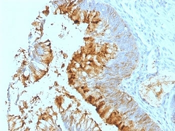 Formalin-fixed, paraffin-embedded human colon carcinoma stained with Blood Group Lewis a antibody (SPM279).  This image was taken for the unmodified form of this product. Other forms have not been tested.