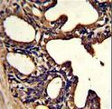 Formalin-fixed and paraffin-embedded human prostate carcinoma with LTF Monoclonal Antibody, which was peroxidase-conjugated to the secondary antibody, followed by DAB staining. This data demonstrates the use of this antibody for immunohistochemistry; clinical relevance has not been evaluated.