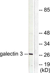 Western blot analysis of lysates from HeLa cells, using Galectin 3 Antibody. The lane on the right is blocked with the synthesized peptide.