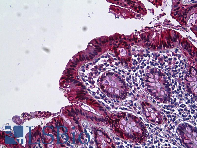 Anti-Galectin-3 antibody IHC of human colon, epithelium. Immunohistochemistry of formalin-fixed, paraffin-embedded tissue after heat-induced antigen retrieval. Antibody dilution 1:100.
