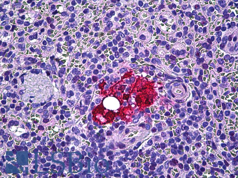 Anti-Galectin-3 antibody IHC of human spleen, macrophages. Immunohistochemistry of formalin-fixed, paraffin-embedded tissue after heat-induced antigen retrieval. Antibody dilution 1:100.