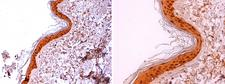 LGALS7 / Galectin 7 Antibody - Anti-Human Galectin-7 staining (4 µg/ml) of a human skin formalin-fixed, paraffin-embedded tissue section; seen at 20x (left) and 40x (right) magnification. Nuclear and cytoplasmic staining of keratinocytes is observed.