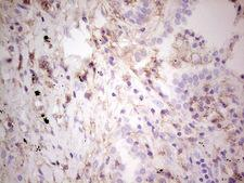 LGALS9 / Galectin 9 Antibody - Immunohistochemical staining of paraffin-embedded Carcinoma of Human lung tissue using anti-LGALS9 mouse monoclonal antibody. (Heat-induced epitope retrieval by 1 mM EDTA in 10mM Tris, pH8.5, 120C for 3min,
