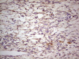 Immunohistochemical staining of paraffin-embedded Human Ovary tissue within the normal limits using anti-LGALS9 mouse monoclonal antibody. (Heat-induced epitope retrieval by 1 mM EDTA in 10mM Tris, pH8.5, 120C for 3min,