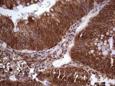 LGALS9 / Galectin 9 Antibody - Immunohistochemical staining of paraffin-embedded Adenocarcinoma of Human colon tissue using anti-LGALS9 mouse monoclonal antibody. (Heat-induced epitope retrieval by 1 mM EDTA in 10mM Tris, pH8.5, 120C for 3min,
