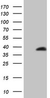 LGALS9 / Galectin 9 Antibody - HEK293T cells were transfected with the pCMV6-ENTRY control (Left lane) or pCMV6-ENTRY LGALS9 (Right lane) cDNA for 48 hrs and lysed. Equivalent amounts of cell lysates (5 ug per lane) were separated by SDS-PAGE and immunoblotted with anti-LGALS9.