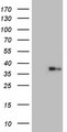HEK293T cells were transfected with the pCMV6-ENTRY control. (Left lane) or pCMV6-ENTRY LGALS9. (Right lane) cDNA for 48 hrs and lysed. Equivalent amounts of cell lysates. (5 ug per lane) were separated by SDS-PAGE and immunoblotted with anti-LGALS9.