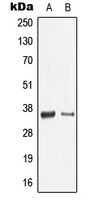 LGALS9 / Galectin 9 Antibody - Western blot analysis of Galectin 9 expression in THP1 (A); mouse spleen (B) whole cell lysates.
