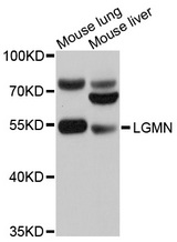 Western blot analysis of extracts of various cell lines, using LGMN antibody at 1:1000 dilution. The secondary antibody used was an HRP Goat Anti-Rabbit IgG (H+L) at 1:10000 dilution. Lysates were loaded 25ug per lane and 3% nonfat dry milk in TBST was used for blocking. An ECL Kit was used for detection and the exposure time was 1s.