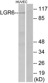 Western blot analysis of lysates from HUVEC cells, using LGR6 Antibody. The lane on the right is blocked with the synthesized peptide.