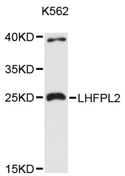 Western blot analysis of extracts of K-562 cells, using LHFPL2 antibody at 1:3000 dilution. The secondary antibody used was an HRP Goat Anti-Rabbit IgG (H+L) at 1:10000 dilution. Lysates were loaded 25ug per lane and 3% nonfat dry milk in TBST was used for blocking. An ECL Kit was used for detection and the exposure time was 90s.