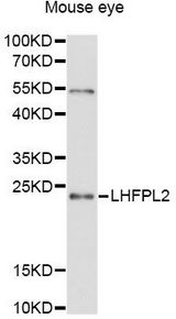 Western blot analysis of extracts of mouse eye, using LHFPL2 antibody at 1:3000 dilution. The secondary antibody used was an HRP Goat Anti-Rabbit IgG (H+L) at 1:10000 dilution. Lysates were loaded 25ug per lane and 3% nonfat dry milk in TBST was used for blocking. An ECL Kit was used for detection and the exposure time was 90s.