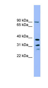 LHPP antibody LS-C116706 Western blot of A549 cell lysate.  This image was taken for the unconjugated form of this product. Other forms have not been tested.