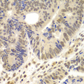 Immunohistochemistry of paraffin-embedded human colon carcinoma using LHX4 antibody at dilution of 1:100 (x400 lens).