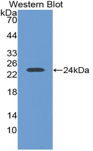Western blot of recombinant LIF.