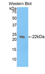 Western blot of recombinant LIF.  This image was taken for the unconjugated form of this product. Other forms have not been tested.