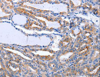 Immunohistochemistry of Human stomach cancer using LIF Polyclonal Antibody at dilution of 1:25.