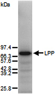 Western blot of total human skin fibroblast proteins using anti-Lipoma Preferred Partner, pAb (IG-817) . Total cell protein (25ug) was separated by SDS-PAGE and blotted onto nitrocellulose. The blot was incubated with 0.5ug/ml of anti-Lipoma Preferred Partner, pAb (IG-817) followed by 125I-protein A.