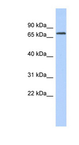 LPP antibody Western blot of COLO205 cell lysate. This image was taken for the unconjugated form of this product. Other forms have not been tested.