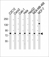 All lanes: Anti-LPP Antibody (N-Term) at 1:2000 dilution. Lane 1: C2C12 whole cell lysate. Lane 2: Caco2 whole cell lysate. Lane 3: Caki-1 whole cell lysate. Lane 4: HeLa whole cell lysate. Lane 5: HepG2 whole cell lysate. Lane 6: MDA-MB-468 whole cell lysate. Lane 7: MCF-7 whole cell lysate Lysates/proteins at 20 ug per lane. Secondary Goat Anti-Rabbit IgG, (H+L), Peroxidase conjugated at 1:10000 dilution. Predicted band size: 66 kDa. Blocking/Dilution buffer: 5% NFDM/TBST.