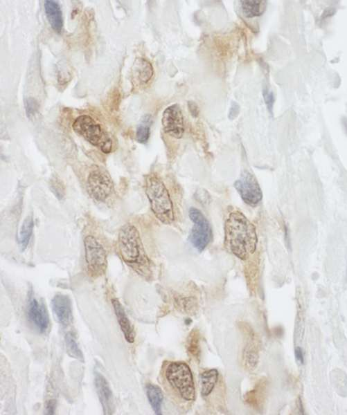 Detection of Human LPP by Immunohistochemistry. Sample: FFPE section of human osteosarcoma. Antibody: Affinity purified rabbit anti-LPP used at a dilution of 1:250.