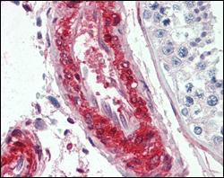 IHC using LPP Antibody (8B3A11)