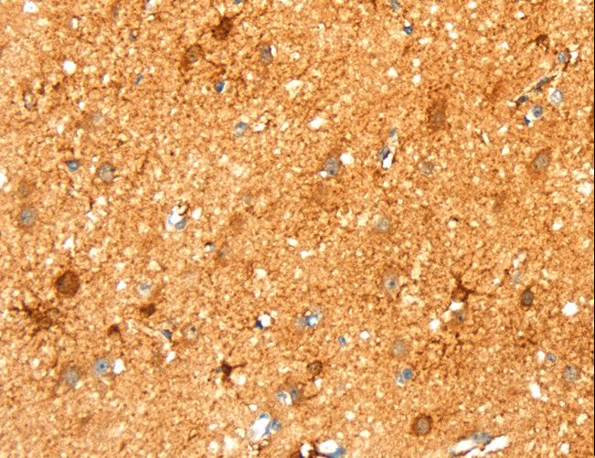 Immunohistochemistry of Human liver cancer using LPP Polyclonal Antibody at dilution of 1:30.